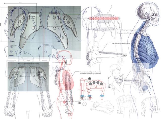 Study of Metamorphose [Plaster cast to preventbad, slumped posture.]