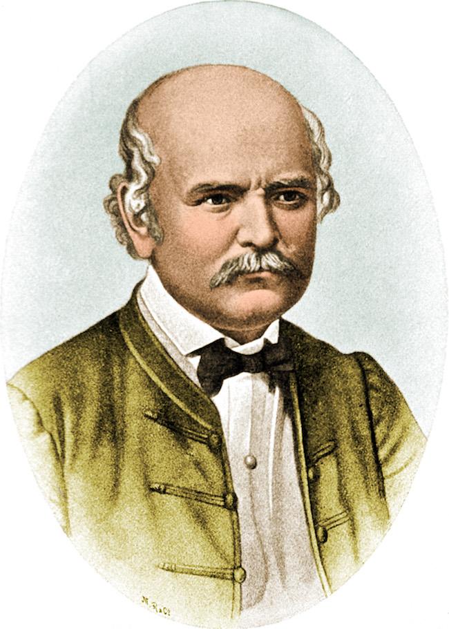 センメルヴェイス(ゼンメルワイス)・イグナーツ(1818-1865)。 (Photo : Science Source/アフロ)
